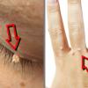4 најдобри домашни лекови против брадавици!