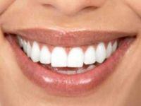 Блескава насмевка