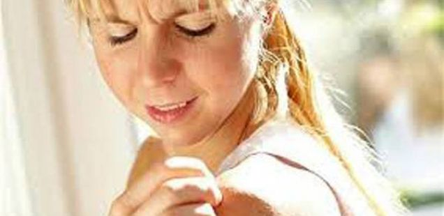 Природно лекување на псоријаза