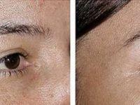 Погледнете како да имате совршена кожа без дамки
