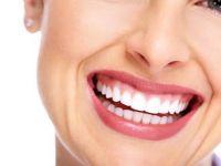 Како да отстраните забен камен од забите без да одите на стоматолог?