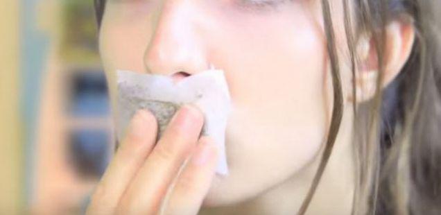 Без мелем и креми  Најбрз начин да ги излечите испуканите усни